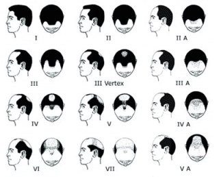 Do essential oils grow hair